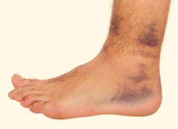 Причины появления, симптомы и лечение вывиха ноги в районе щиколотки