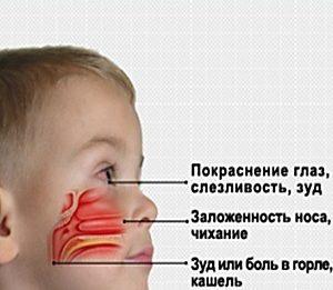 Симптомы вазомоторного аллергического ринита у детей и беременных