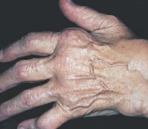 Симптомы инфекционно-аллергического артрита и полиартрита у детей